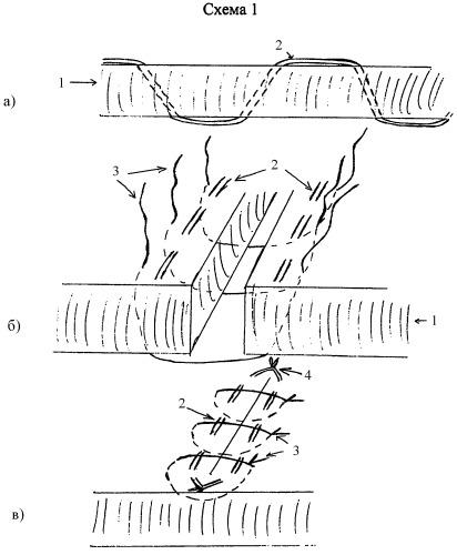 Способ ушивания апоневроза лапаротомной раны для профилактики эвентраций и грыж