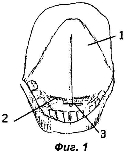 Способ операции на щитовидной железе и других органах переднего отдела шеи и ранорасширитель для ее выполнения