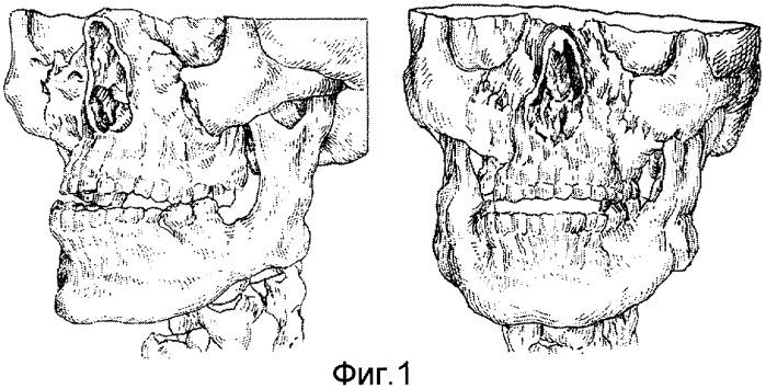 Способ внеочагового-стержневого остеосинтеза при переломах верхней челюсти по типу ле-фор - ii средний и комплект для его осуществления
