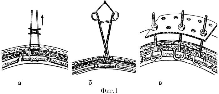 Устройство для фиксации реберной панели