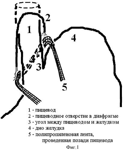 Способ хирургического лечения грыж пищеводного отверстия диафрагмы