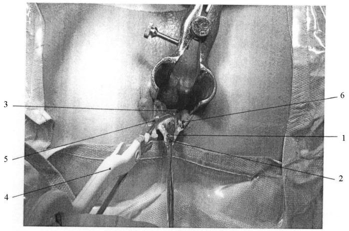 Сфинктеротомия фото