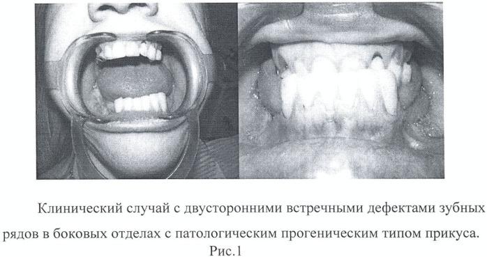 Способ протезирования встречных концевых дефектов зубных рядов