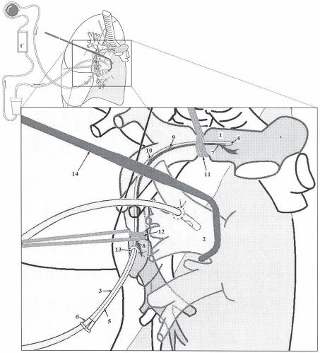 Способ селективной изолированной легочной перфузии цитостатиков верхней доли левого или верхней и средней доли правого легкого при их метастатическом поражении и устройство для его осуществления
