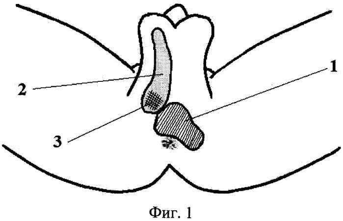 Способ устранения раневого дефекта кожи перианальной области у мужчин