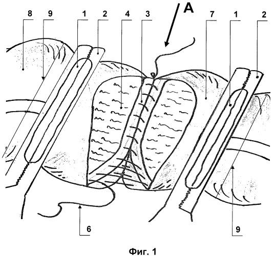 Способ наложения ручного кишечного шва при формировании кишечных анастомозов в абдоминальной хирургии