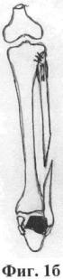 Способ оперативного лечения неправильно сросшихся подголовчатых переломов малоберцовой кости при застарелых переломовывихах в голеностопном суставе