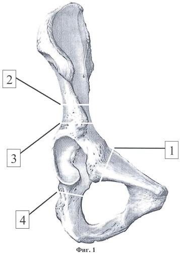 Способ выполнения транспозиции вертлужной впадины в ходе тройной остеотомии таза