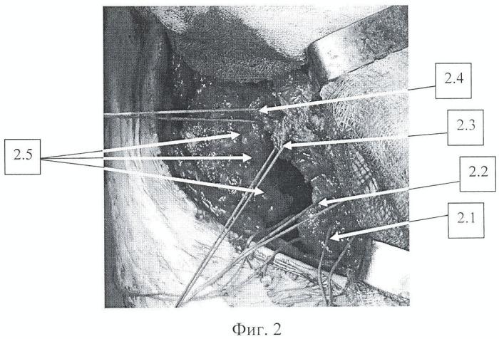 Способ эндопротезирования больных коксартрозом с сопутствующей наружной ротационной контрактурой тазобедренного сустава 2-3-й степени
