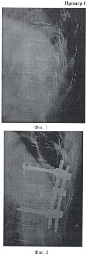 Способ перкутанной вертебропластики при травмах и заболеваниях позвоночника