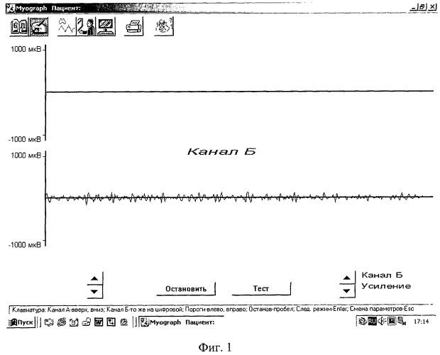 Способ прогнозирования рецидива эквинусной и эквиноварусной деформаций стопы после их раннего хирургического лечения у детей с дцп