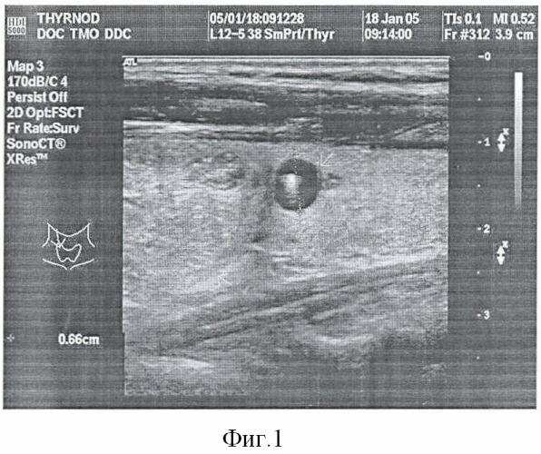 Способ определения показаний к инвазивным исследованиям при узловых образованиях щитовидной железы