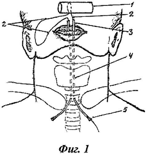 Способ лигатурной фиксации в трахее линейного эндопротеза