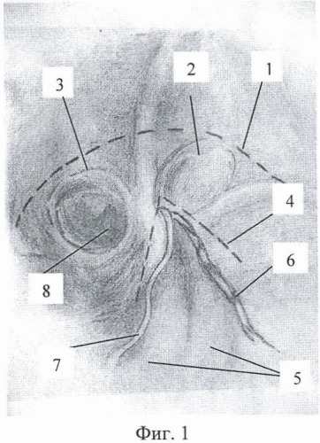 Способ эндоскопической пластики при паховых грыжах