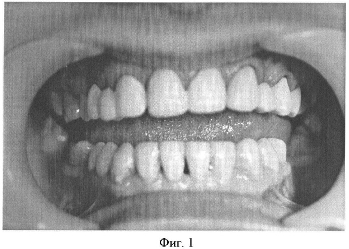 Способ препарирования зуба при пародонтите