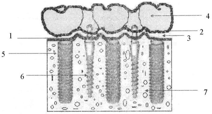 Способ временного протезирования несъемными мостовидными зубными протезами