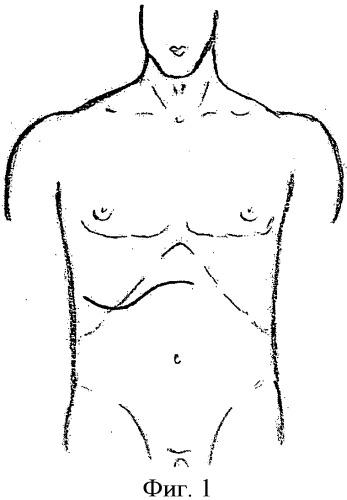 Способ доступа мерзликина-парамоновой для операций на печени и желчных путях