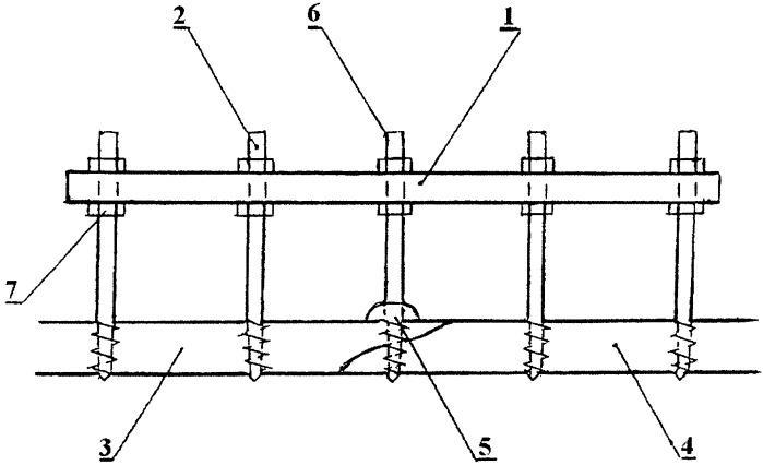 Способ комбинированного остеосинтеза переломов длинных трубчатых костей