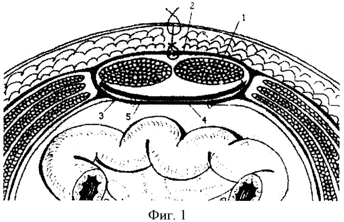 """Способ """"ненатяжной"""" комбинированной реконструктивной герниопластики при вентральных грыжах с анатомическим дефицитом тканей передней брюшной стенки"""