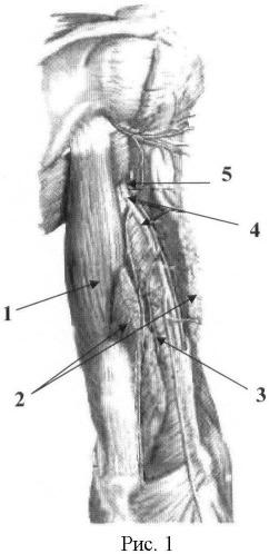 Способ восстановления активного сгибания в локтевом суставе у больных с артрогрипозом