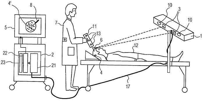 Хирургическая система, управляемая по изображениям