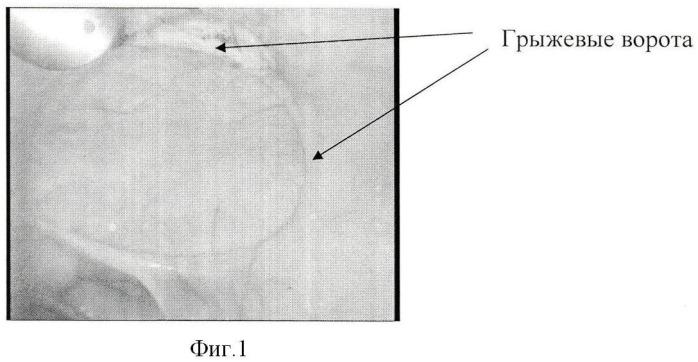 Способ комбинированной лапароскопической герниопластики