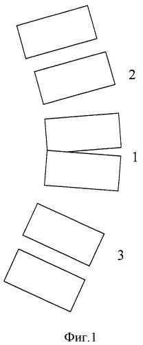 Способ коррекции врожденного кифоза (деформации) поясничного и грудопоясничного отделов позвоночника у детей при нарушении сегментации передних отделов позвонков
