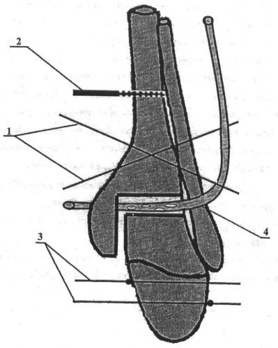 Способ артродеза голеностопного сустава при гнойных остеоартритах