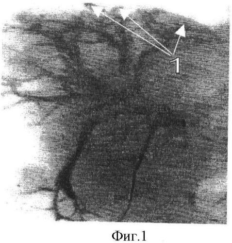 Способ лечения описторхоза, осложненного желчекаменной болезнью