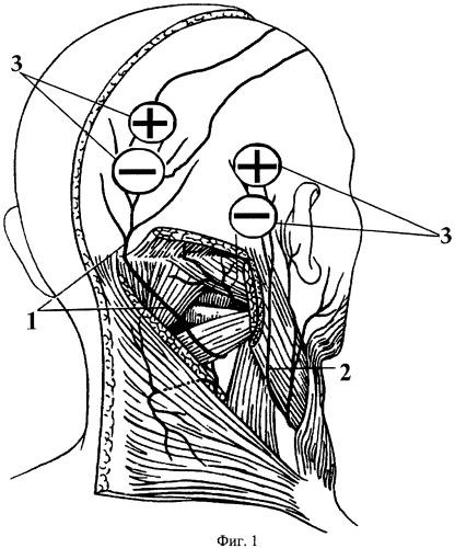 Способ диагностики цервикогенных головных болей