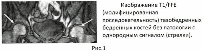 Скрининговый способ диагностики асептического некроза суставных концов костей крупных суставов