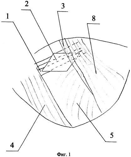 Способ миопластики после радикальных органосохраняющих операций на молочной железе