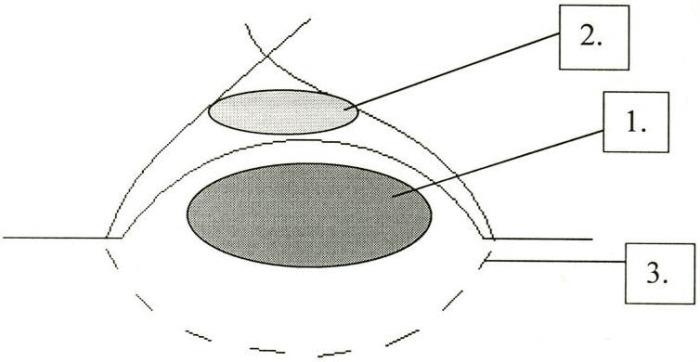 Прошивной способ лечения серозного локтевого бурсита