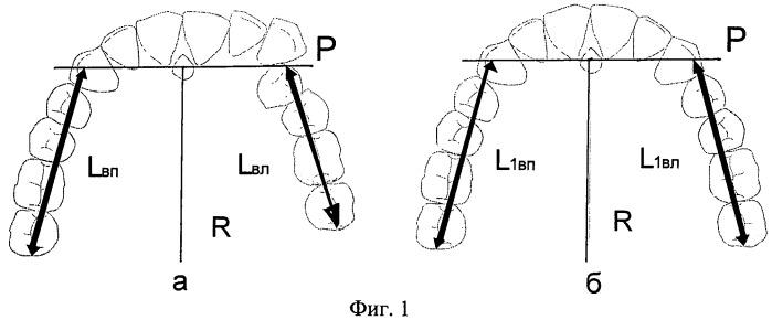 Способ биометрической диагностики направления и величины перемещения зубов при ортодонтическом лечении