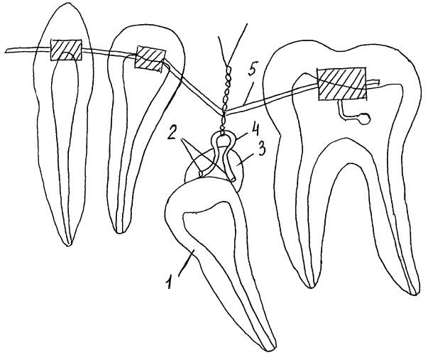 Способ ортодонтического лечения ретенированного зуба