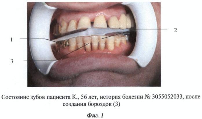 Способ шинирования зубов при пародонтите