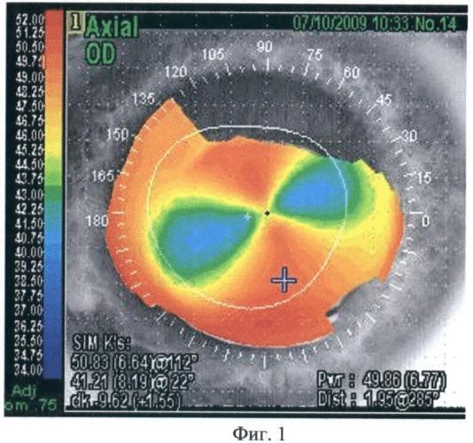 Способ коррекции астигматизма после эпикератопластики методом имплантации интрастромальных роговичных сегментов