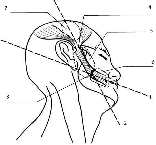 Способ коррекции парализованной мимической мускулатуры средней и нижней зон лица