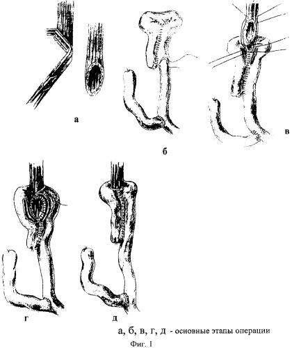 Способ формирования арефлюксного пищеводно-тонкокишечного анастомоза