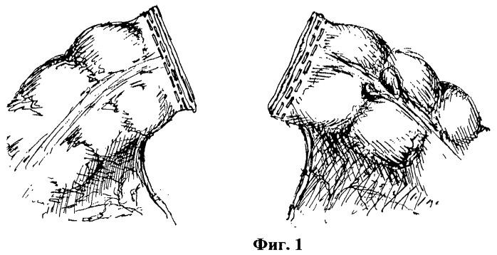 Способ хирургического формирования инвагинационного однорядного закрытого анастомоза при резекции ободочной кишки