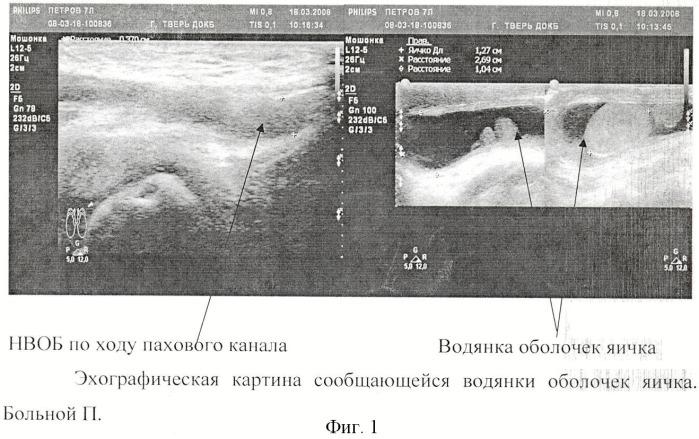 Способ определения показаний к выбору метода оперативного лечения водянки оболочек яичка у детей по данным комплексного ультразвукового исследования