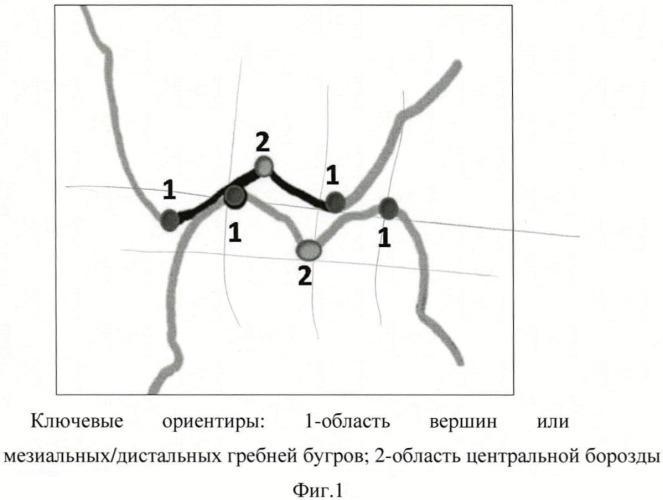 Способ измерения размеров зубов, зубных бугров и их внутренних и наружных скатов