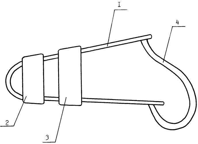Корригирующее приспособление при вальгусном отклонении первого пальца стопы