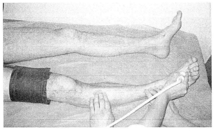 Способ диагностики компенсации кровоснабжения нижней конечности при выключении из магистрального кровотока фрагмента передней большеберцовой артерии
