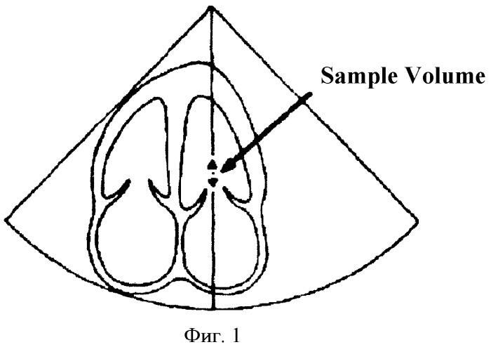 Способ диагностики начальных проявлений диастолической дисфункции миокарда левого желудочка у детей, находящихся на разных этапах полихимиотерапии
