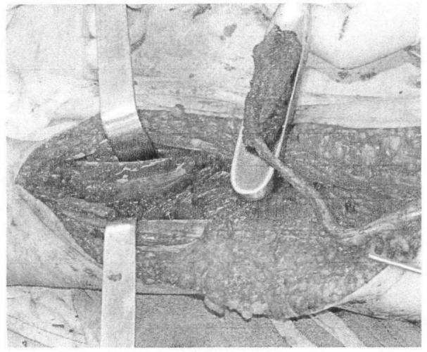 Способ забора свободного реваскуляризируемого лучевого надкостнично-кортикального аутотрансплантата