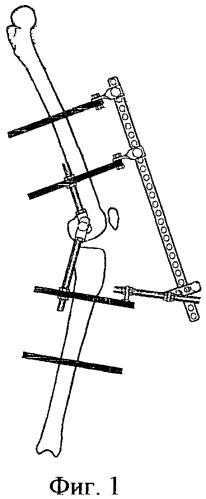 Аппараты для лечения контрактур коленного сустава лечебная физкультура для локтевого сустава