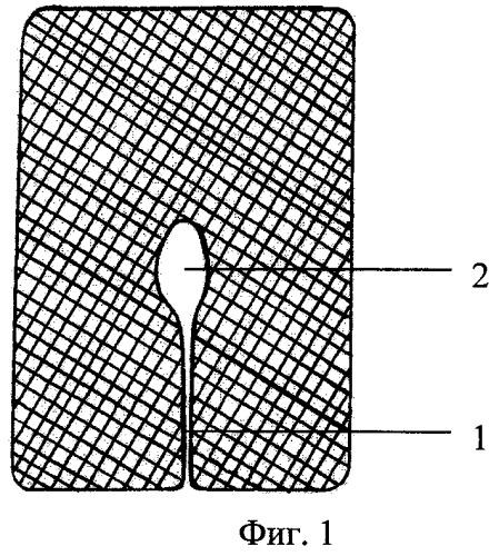 Способ замещения окончатых дефектов трахеи и гортани