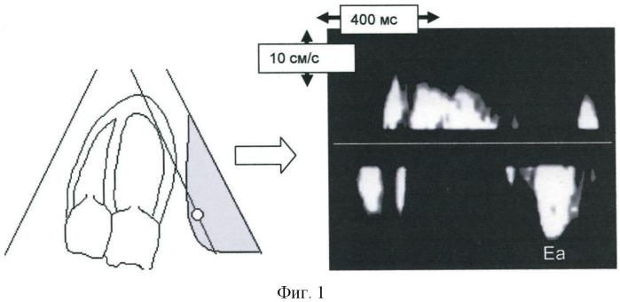 Способ диагностики минимальных проявлений диастолической дисфункции миокарда левого желудочка у больных артериальной гипертензией 1-й степени