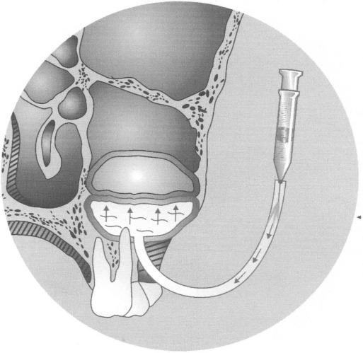Способ эндоскопической цистэктомии верхнечелюстной пазухи